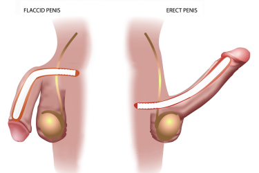 Penile Implant Surgery in India, Best Doctor for Penile Implant Surgery in India, Best Hospital for Penile Implant Surgery in India, Cost of Penile Implant Surgery in India, Dr Raman tanwar andrologist for penile implant surgery, dr gautam banga penile implant surgeon in india